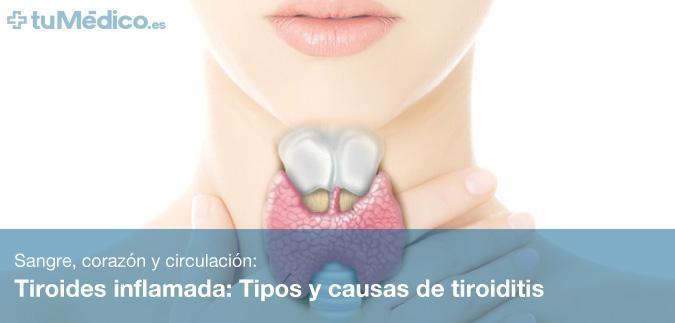Tiroides Inflamada Tipos Y Causas De Tiroiditis