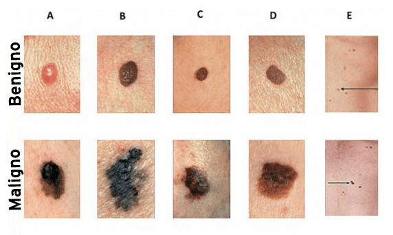 Resultado de imagen para ¿Puede un lunar convertirse en un melanoma cancerígeno?
