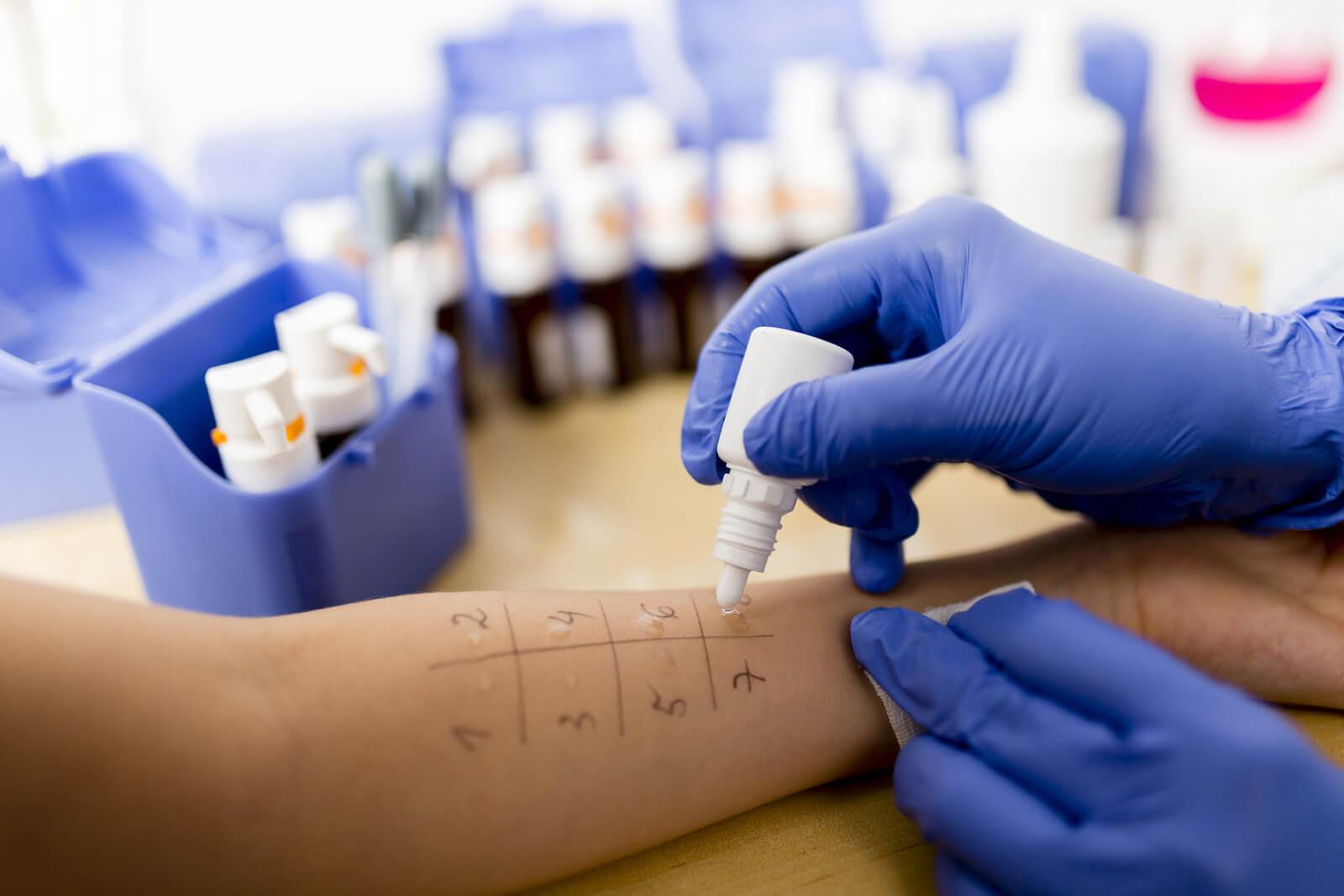 Allergy - skin prick tests